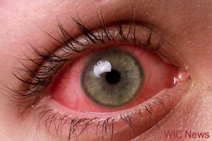 red eye stock image